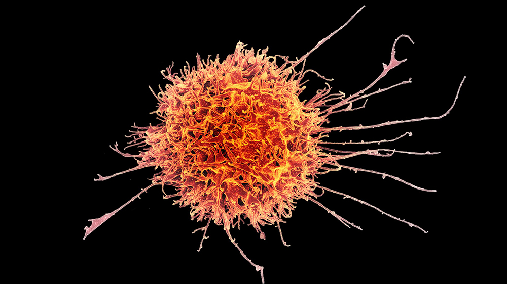 Human immune cells can eliminate cancer cells. Anaveon has developed a special antibody to boost the body's own defense mechanism. The picture shows an electron-microscopic view of one of the immune system's CD8 killer cells. (Image: NIAID/flickr)